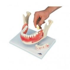 Affection dentaire, agrandissement : 2 fois, 21 pièces