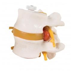 2 vertèbres lombaires avec prolapsus du disque