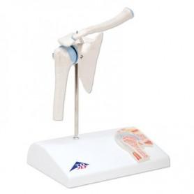 Articulation miniature de l'épaule avec coupe transversale