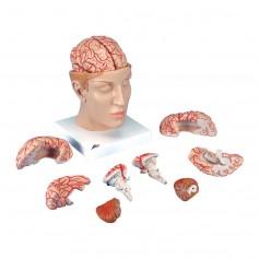 Cerveau avec artères, monté sur base de la tête, en 8 partie
