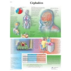 Planche anatomique Céphalées