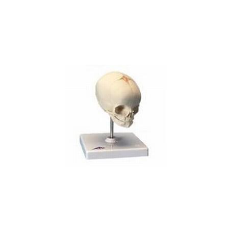 Crâne de foetus, sur support