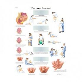 Planche anatomique L'accouchement