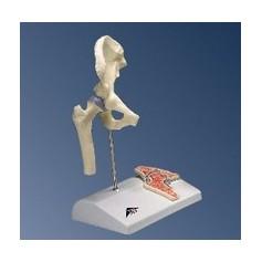 Model anatomique mini-articulation de la hanche avec coupe transversale