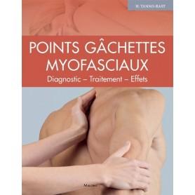 Points gâchettes myofasciaux. Diagnostics, thérapie, effets