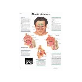 Rhinite et sinusite
