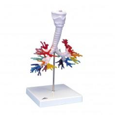 CT de l'arbre bronchique avec le larynx