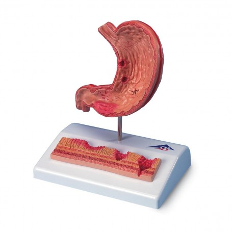 Estomac avec ulcères gastriques