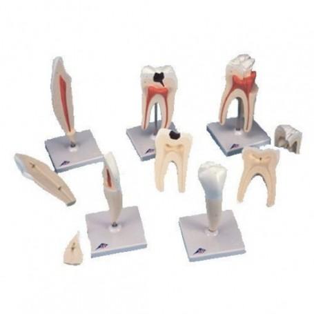 Série de 5 modèles de dents