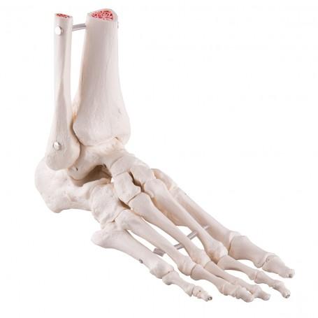 Squelette du pied avec moignon tibia et fibula (péroné)