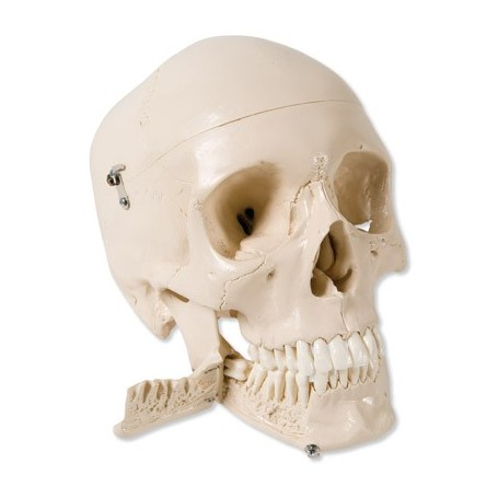 Crâne avec dents pour extraction, en 4 parties