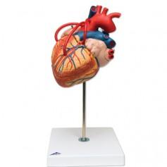 Coeur avec pontage, agrandi 2 fois, en 4 parties